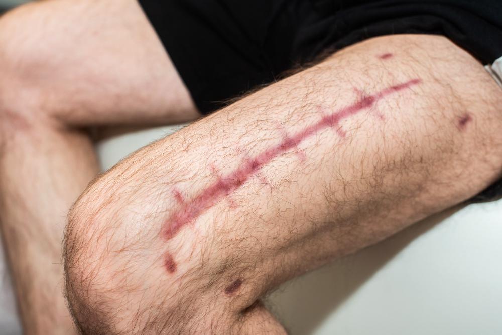 Cum prevenim cicatricile